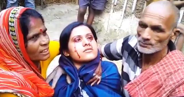 Gözlerinize İnanamayacaksınız! Kan Terleyen Kadın, Kocası Tarafından Cadı Diye Terk Edildi