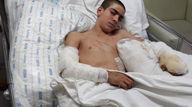 İzmir'de Pitbull Dehşeti! 12 Yaşındaki Çocuk Ölümden Döndü