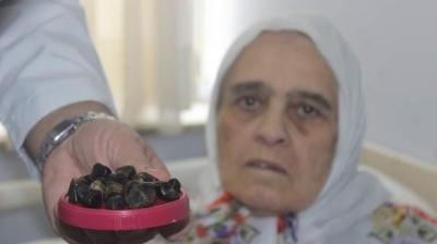 Denizli'de Yaşlı Kadının Safra Kesesinden Öyle Taşlar Çıktı Ki Doktorlar Bile Şaşkına Döndü