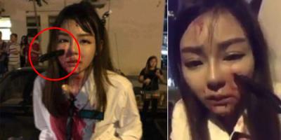 Kapkaççıya Direnen Genç Kız Dehşeti Yaşadı! Yüzünü Görenler Şoka Girdi