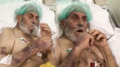 Yoğun Bakımda Skandal Görüntüler! Hemşireler Yaşlı Hastaya Sigara Verip Dalga Geçti