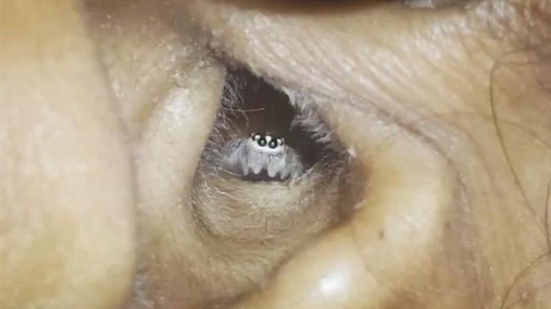 Kulak Ağrısıyla Hastane Giden Kadın Büyük Şok Yaşadı! Kulağından Çıkanı Görenler İse Hemen O Anları Cep Telefonlarına Kaydetti