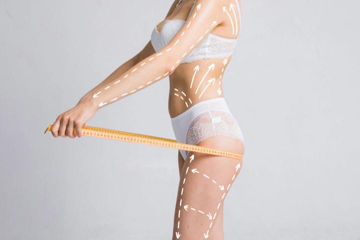 Laser Liposuction Hakkında Doğru Bilinen Yanlışlar