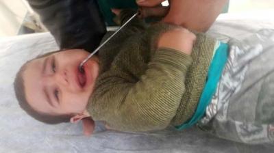 Antalya'da Akıl Almaz Olay! 9 Aylık Bebeğin Ağzına Soba Demiri Saplandı