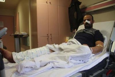 Burnunu ve bacağını parçaladılar, annesi son anda kurtardı!'Beni götürüp getirdiler...'