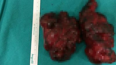 Doktor Ameliyat İçin Zor İkna Etti! Hastanın Boynundan Çıkanlar İse Herkesi Şaşkına Çevirdi